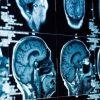 うつ病の一部は「体内での炎症」が原因か:研究結果 | WIRED.jp